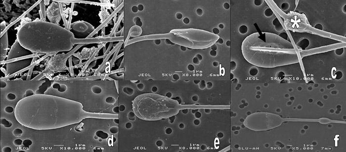 patologiya-golovki-spermatozoidov-chto-delat