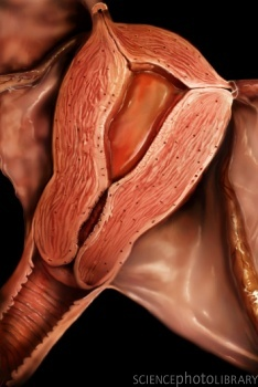 влагалищной дистопии наружного отверстия уретры-мт3