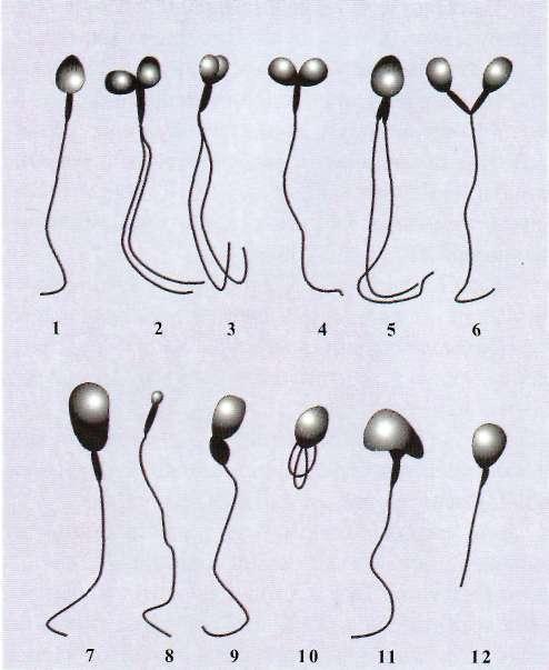 patologiya-golovki-spermatozoida-pochemu