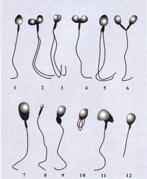 narushenie-morfologii-spermotozoidov