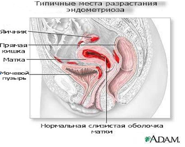 vliyanie-spermi-na-endometrioz