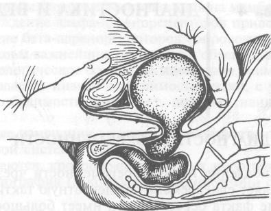 цианоз слизистой влагалища в картинках-ие3