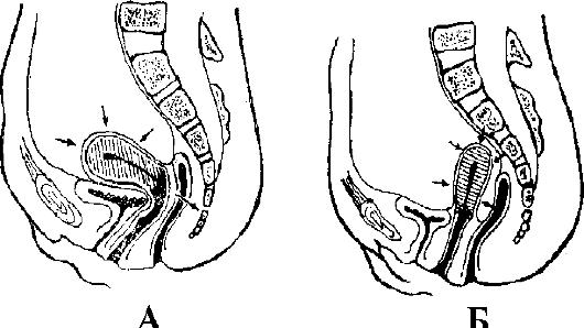 mozhet-rektalno-vaginalniy-svish-zazhit-samostoyatelno