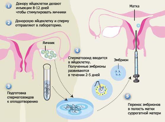 chto-nuzhno-prinimat-dlya-spermatozoidov